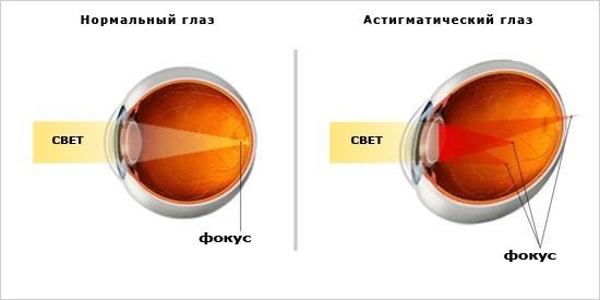Зарядки для глаз для улучшения зрения для детей